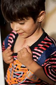 child with chest scar.jpg